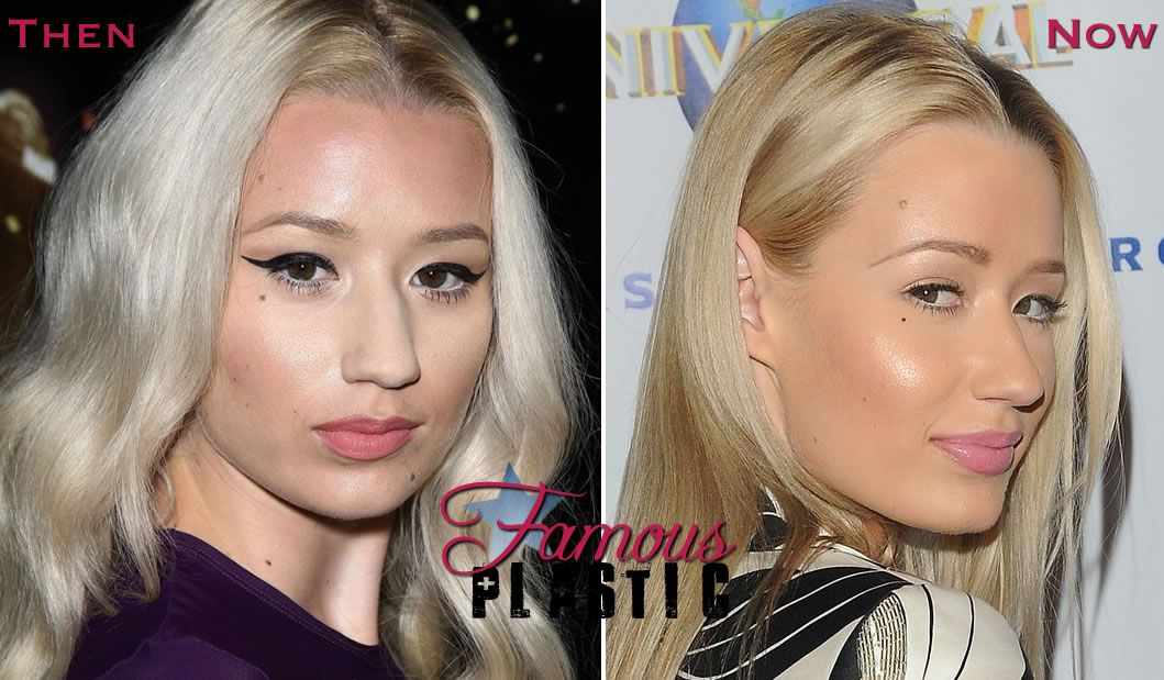 Iggy Azalea Nose Job Rhinoplasty Before And After Rhinoplasty Before And After Nose Job Celebrity Surgery