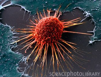 Cervical cancer cell imaged using a scanning electron microscope