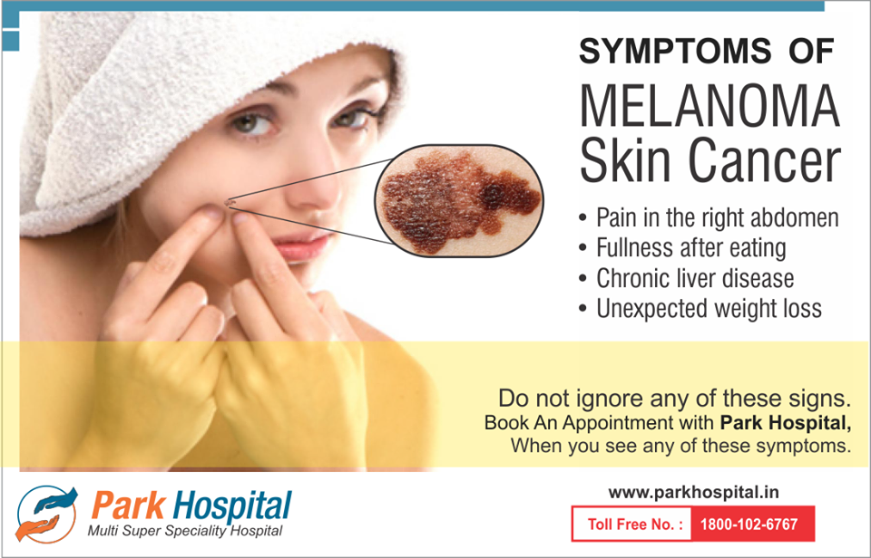 Symptoms of melanoma skin cancer - Pain in the right ...