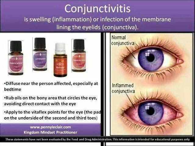 Pink Eye Mezclas De Aceites Esenciales Aceite Esencial De