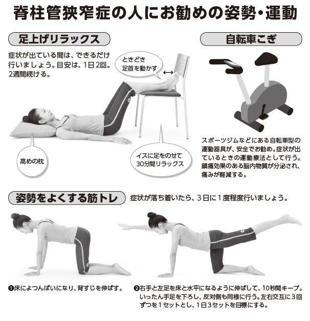 神経痛 運動 坐骨