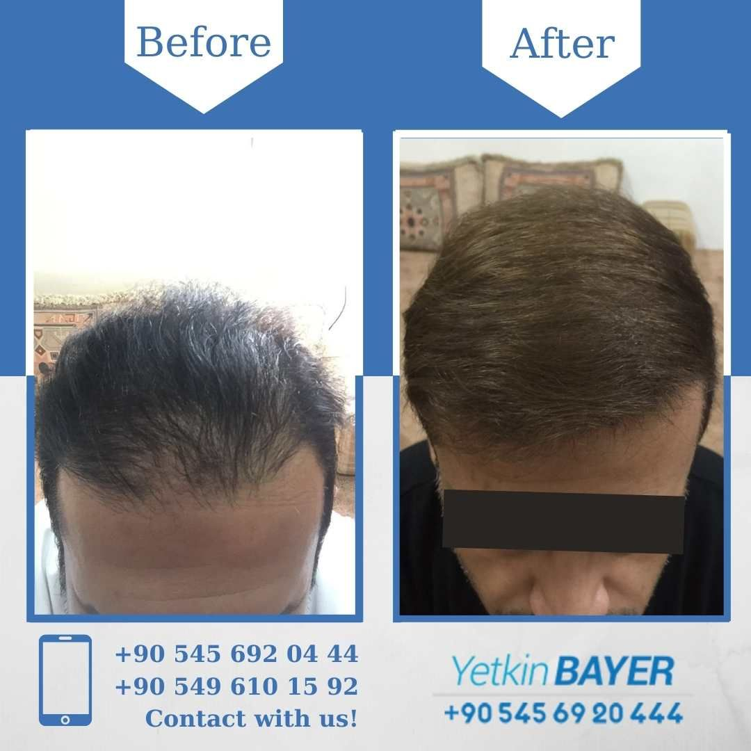 Hair Transplant Before After 8 Months Later 2500 Grafts Sapphire Technique Hair Transplant Hair Transplant Results Hair Transplant Procedure