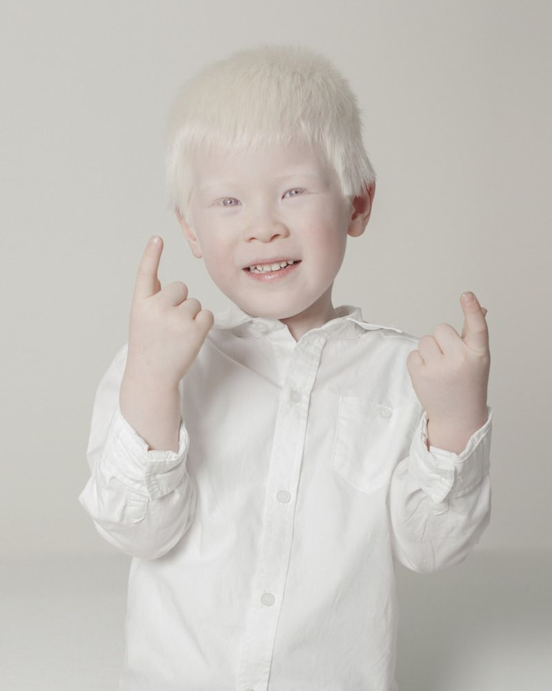 404 Not Found Albino Girl Albino Human Albinism