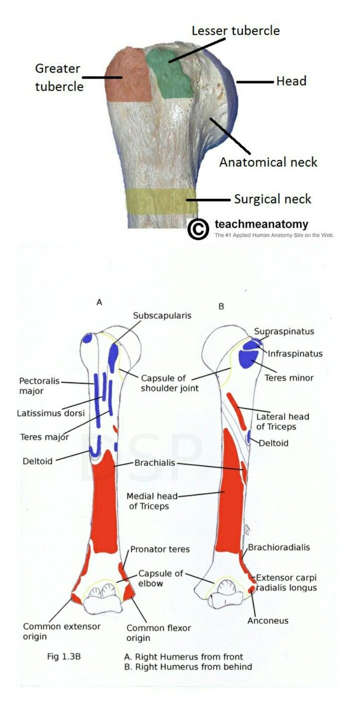 """Subscapularis is attached to """"lesser tubercle"""" (Note ..."""