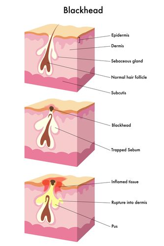 how to clear up blackheads