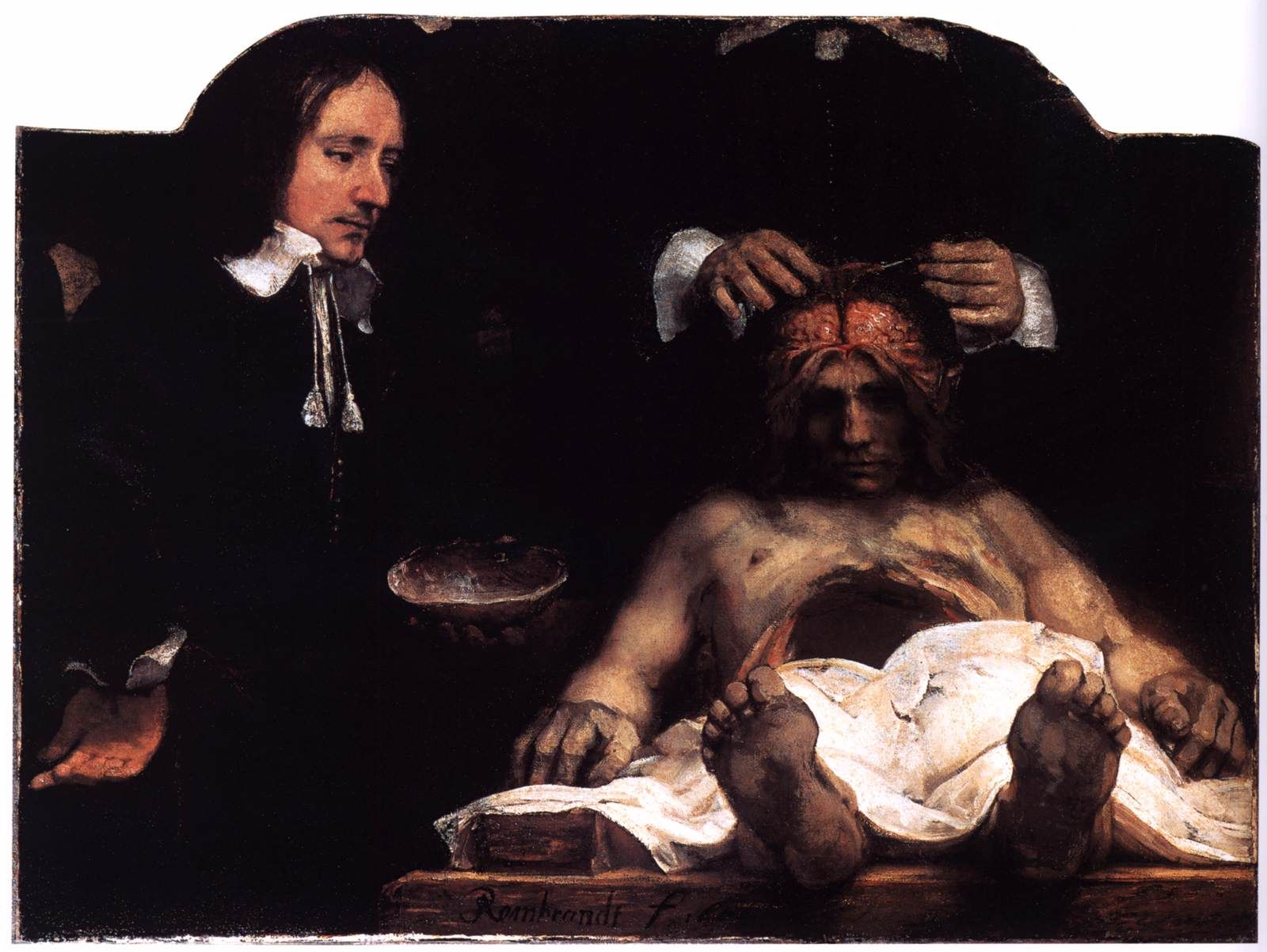 Rembrandt, The Anatomy Lesson of Joan Deyman, 1656, Oil on canvas ...