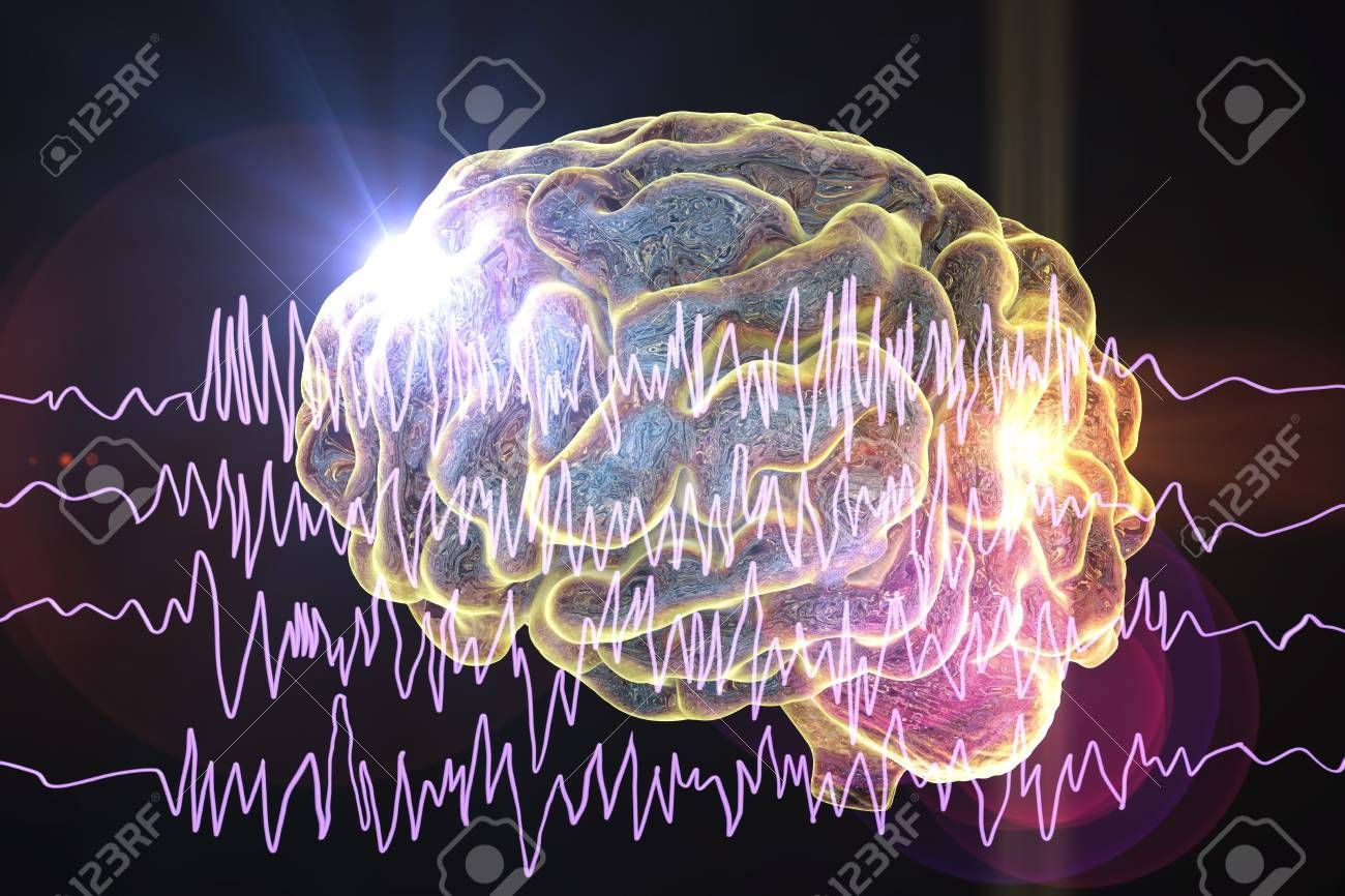Epilepsy awareness concept Brain and encephalography in epilepsy patient during seizure attack 3D illustration in purple color