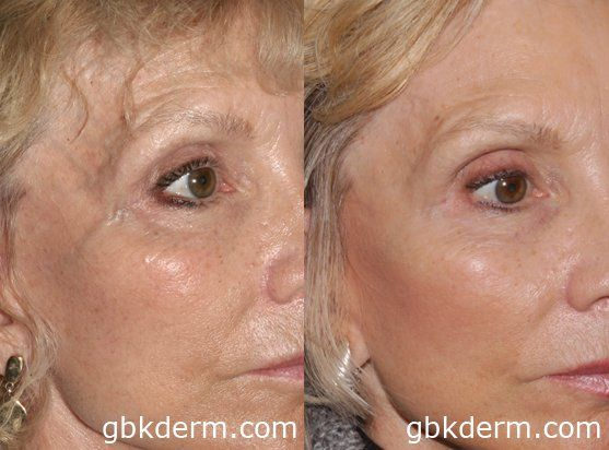 Before and after #face vein removal | Cosmetic Laser