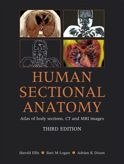 Human Sectional Anatomy Atlas of Body Sections CT and MRI Images PDF ...