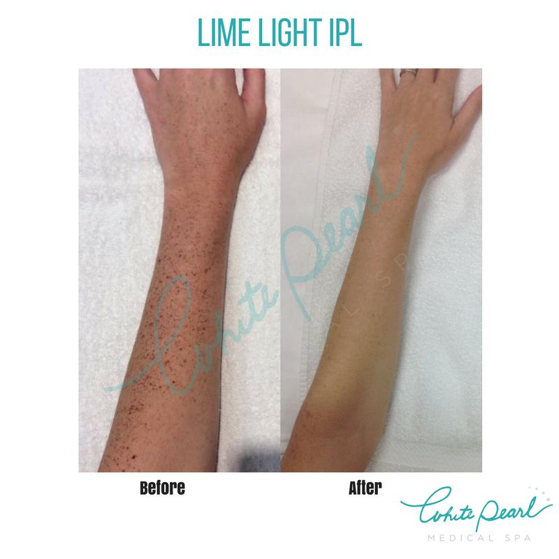 Http Www Whitepearlmedspa Com Services Skin Care Spot Removal Limelight Photofacial Photofacial Pa Medical Spot Removal