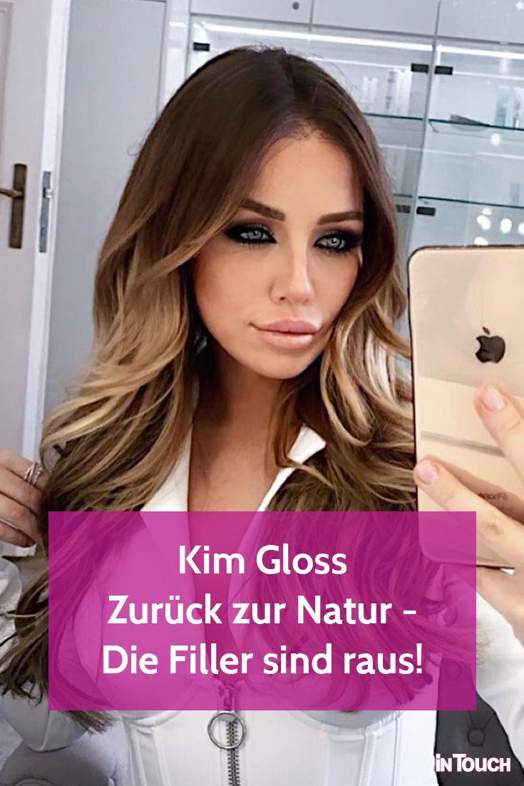 Kim Gloss: Mega Verwandlung! Ihre Lippen-Filler sind raus