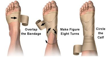 Elastic Wrap Bandage With Metal Clips Allina Health Medical
