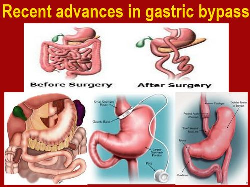Recent Advances In Gastric Bypass