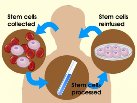 Therapy stem pdf cell