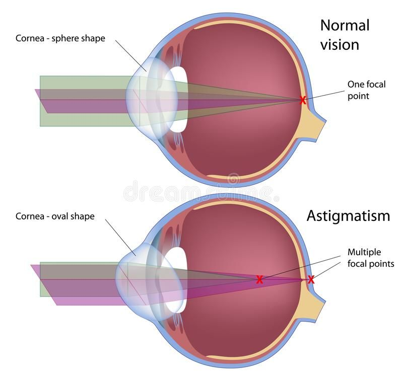 Astigmatism Royalty Free Illustration Astigmatism Eye Health Contact Lenses Online