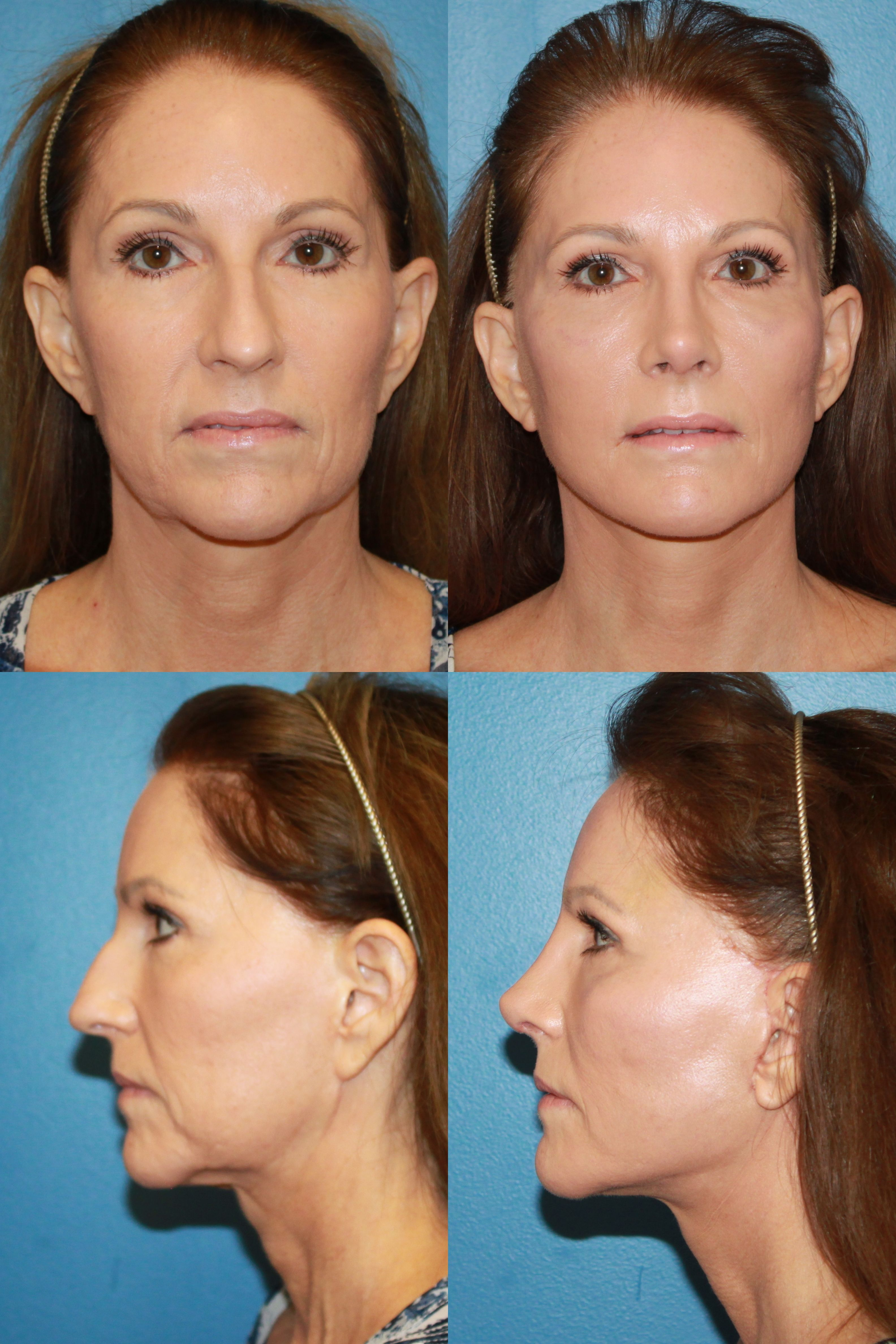 best images about rhinoplasty rhinoplasty 17 best images about rhinoplasty rhinoplasty surgery no obligation and fat transfer