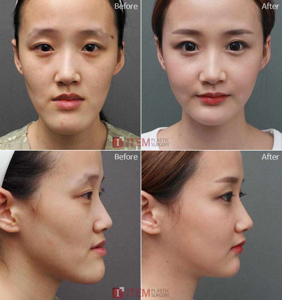 What Are The Different Cosmetic Surgeries Available