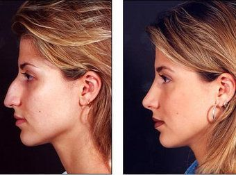 rhinoplasty before and after google search nez pinterest rhinoplastie chirurgie. Black Bedroom Furniture Sets. Home Design Ideas