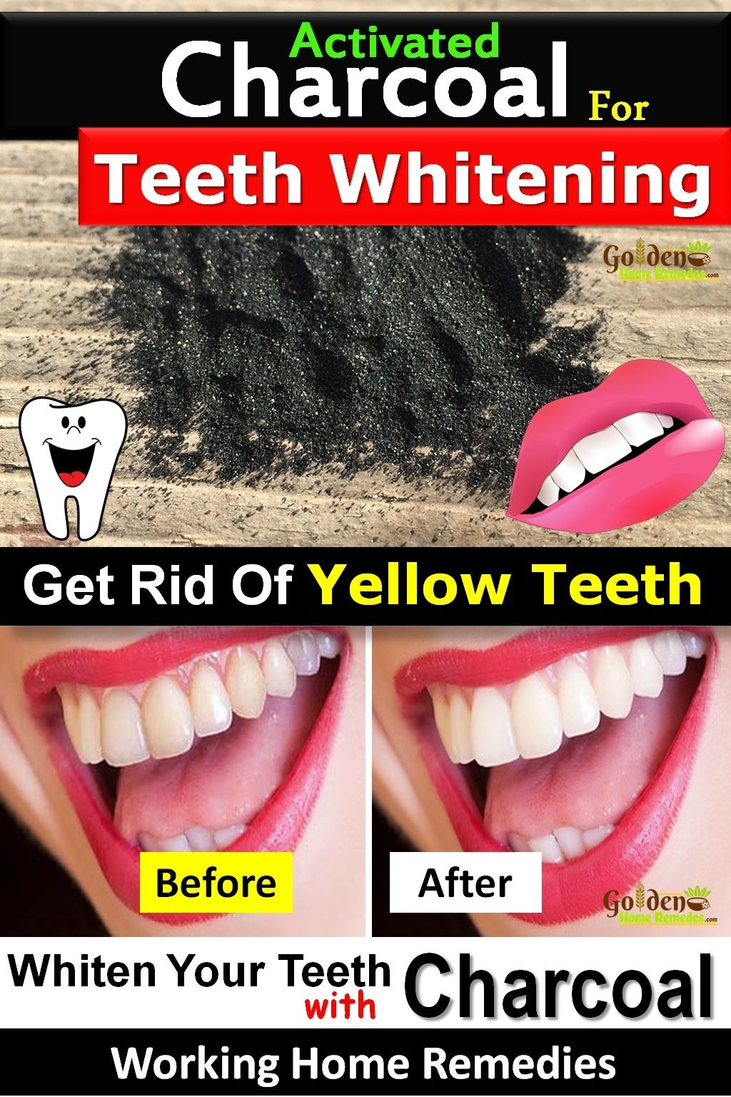 Teeth Whitening With Activated Charcoal How To Use Activated