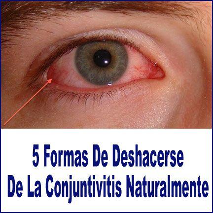 5 Formas De Deshacerse De La Conjuntivitis Naturalmente ...