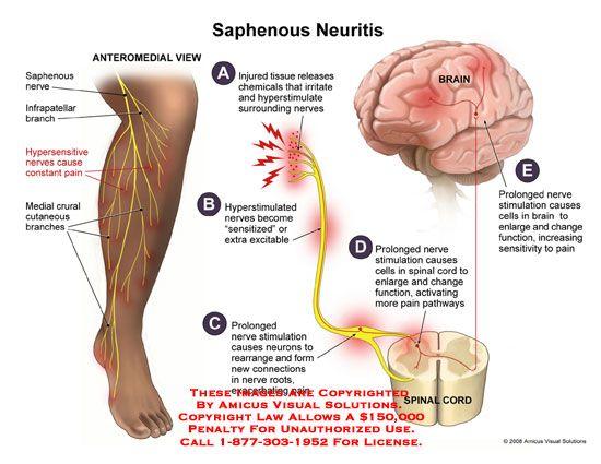Saphenous Nerve Damage Symptoms Bing Images Stuff