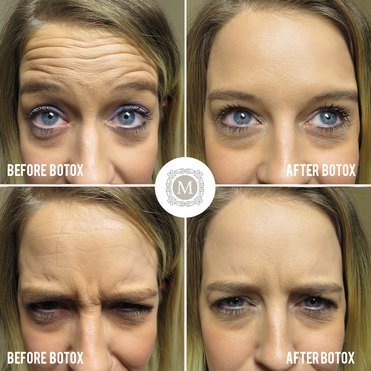 This Patient Had 20 Units Of Botox For Forehead Wrinkles Frown Lines Lines Between The Brow Forehead Wrinkles Botox Forehead Botox