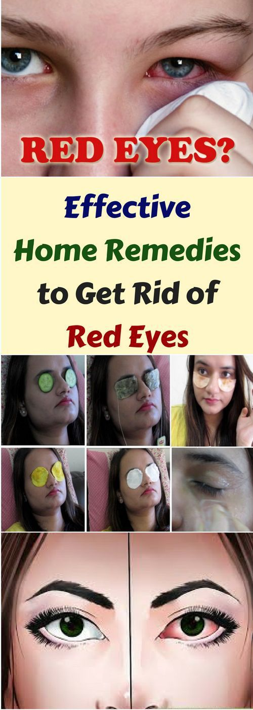 Effective Home Remedies To Get Rid Of Red Eyes!!!  #lifehacks  #fitness