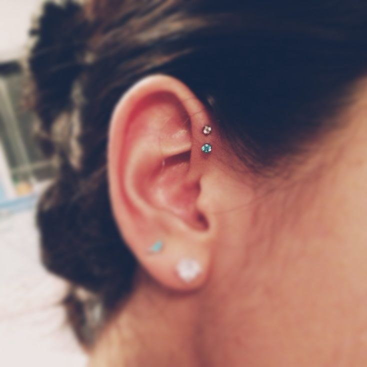 My New Double Forward Helix Less Swollen Than A Couple Days Ago