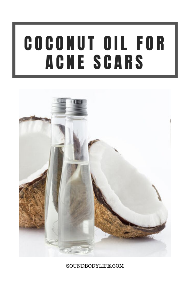 Coconut Oil for Acne Scars #organicmakeup