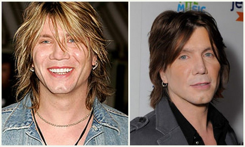 John Rzeznik Plastic Surgery Before And After