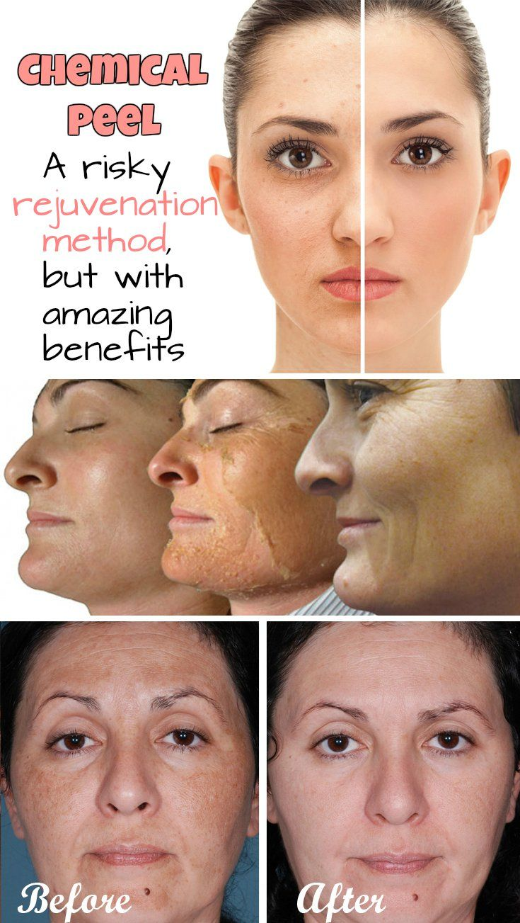 Original methods of rejuvenation