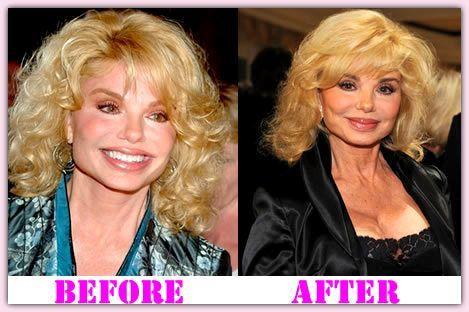 Pin On Plastic Surgery Celebrities