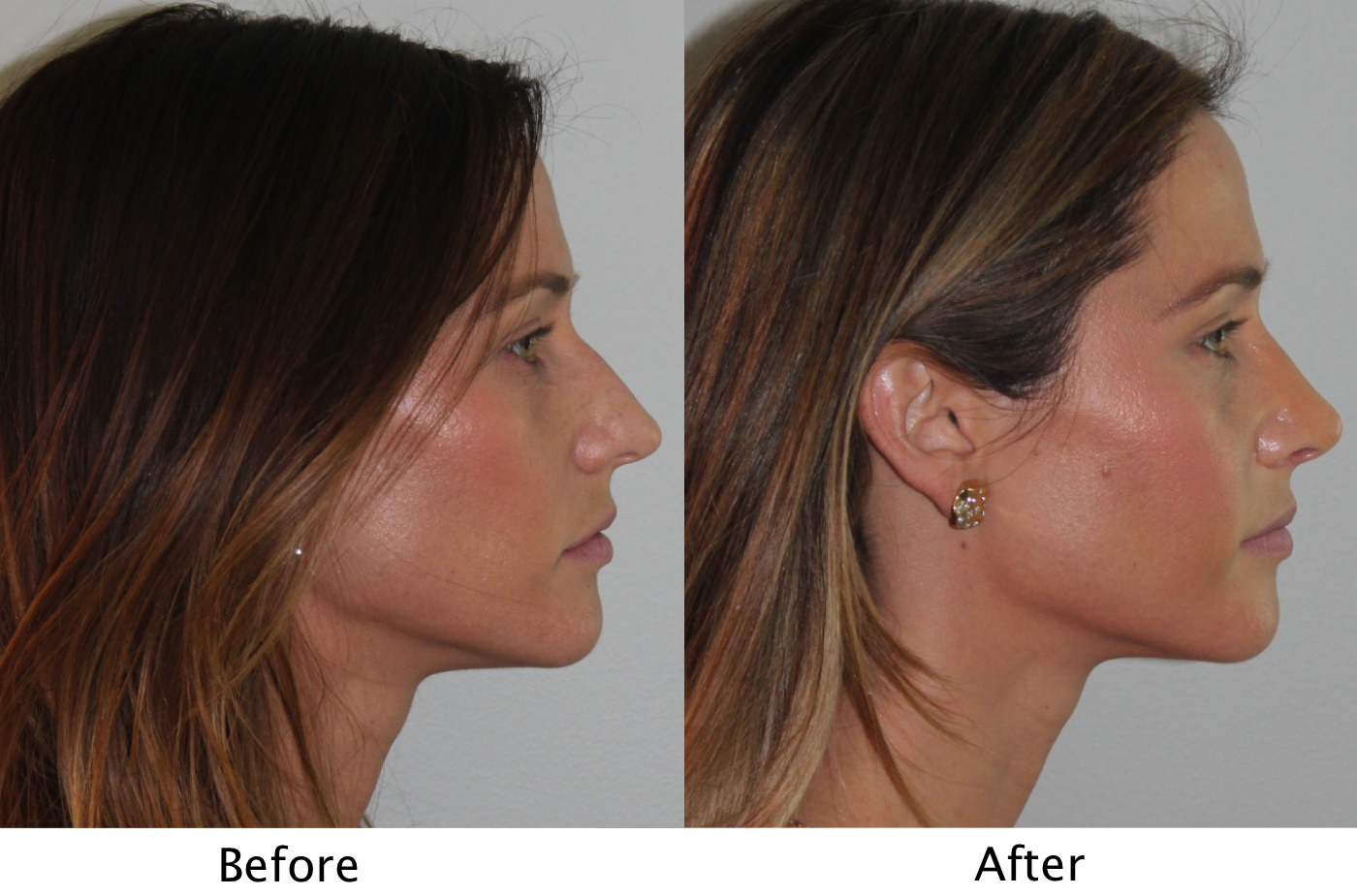 Female Patient Profile View Before And After Sinus Surgery To