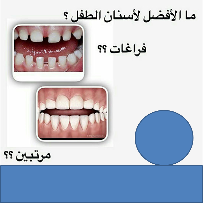 الفراغات بين الاسنان للاطفال Convenience Store Products Convenience Store Pill