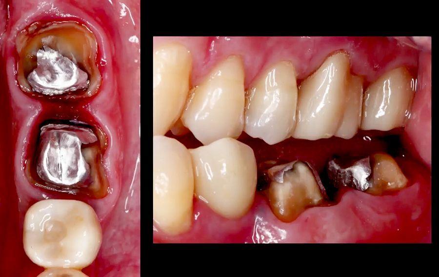 Digital-Dentistry