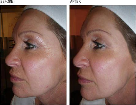 how to fix loss of collagen around eyes