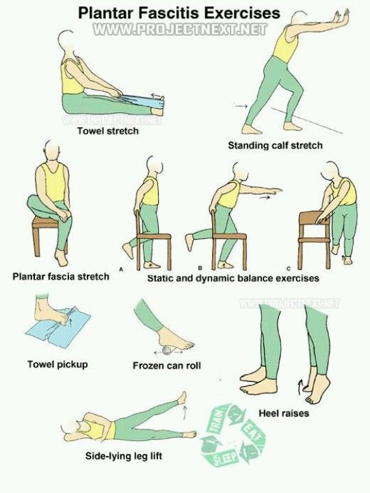 34+ What exercises are good for plantar fasciitis trends