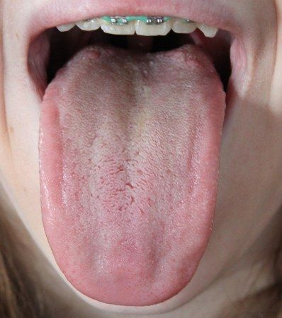 Introduction to Tongue Assessment for the Western Herbalist