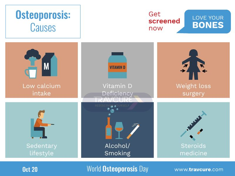 26+ Who should be screened for osteoporosis ideas in 2021