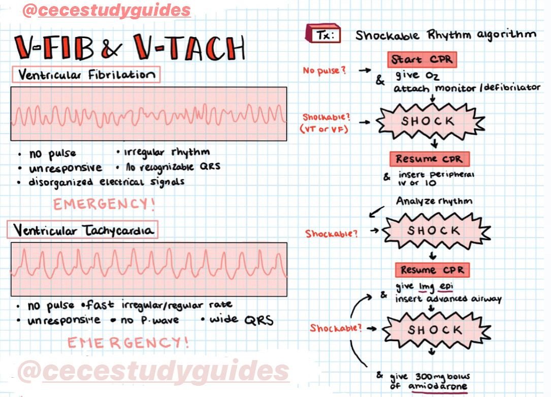 EKG Interpretation & Dysrhythmias