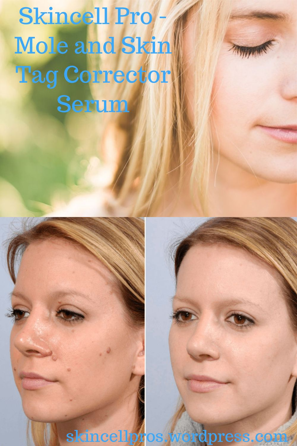 Do you have unsightly moles or skin tags? Try Skincell..