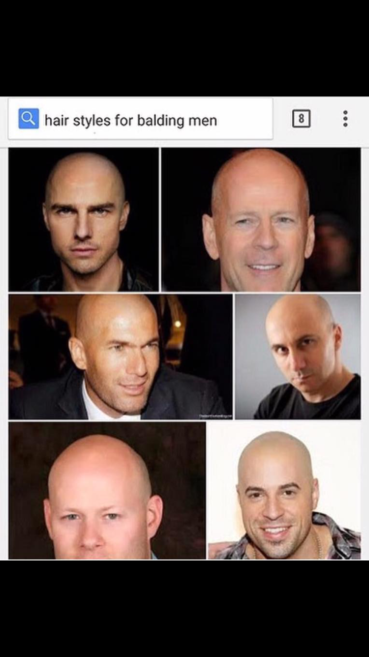 hairstyles for balding men | lol | funny pictures, offensive