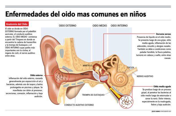 Enfermedades De Oido Mas Comunes En Los Ninos Otitis Externa Es Un Trastorno Que Involucra Infeccion Y Dano De Los Huesos Oido Medio Otitis Media Oido Externo
