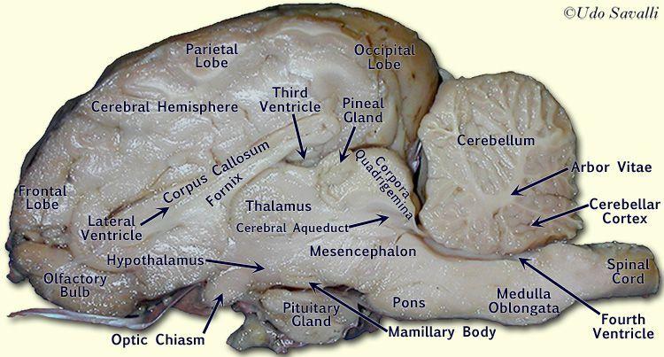 Labeled Sheep Brain | Sheep Brain internal view labeled ...