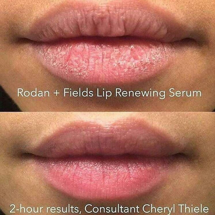 Chapped Lips Got You Down Redefine Lip Renewing Serum To The