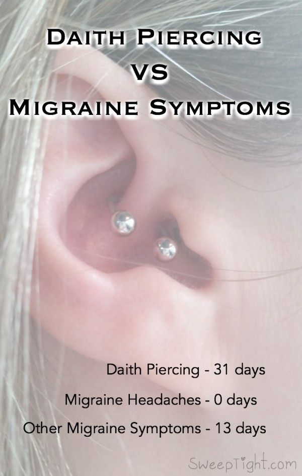 The ear piercing for migraines results after days also rh pinterest