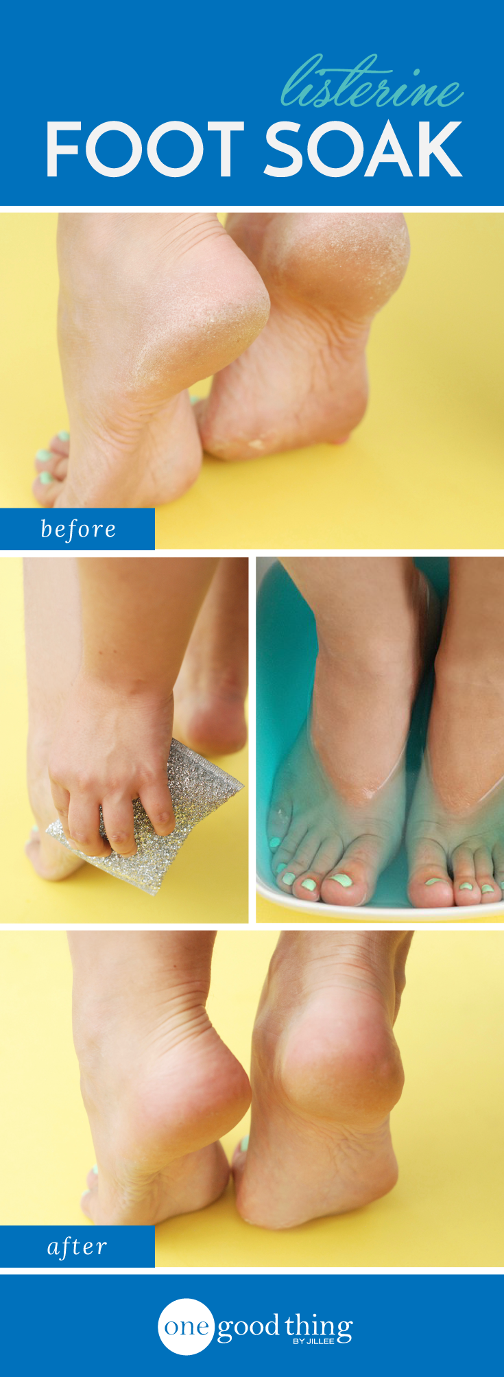 How to make heels smooth and beautiful at home