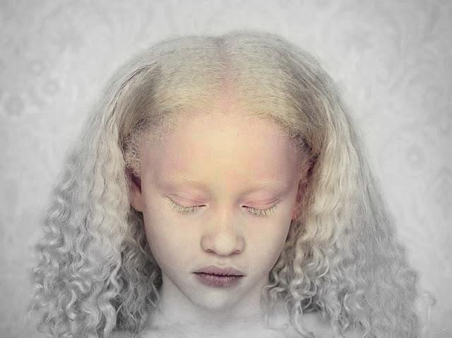 Black Beyond Melanin Albino Africano Albino Girl Albinism Albino Human