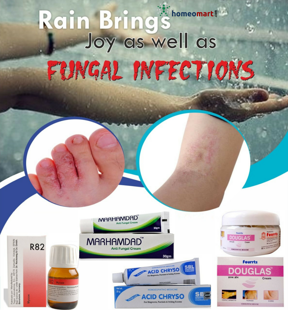 Homeopathy Medicine list for fungal infections, Buy online