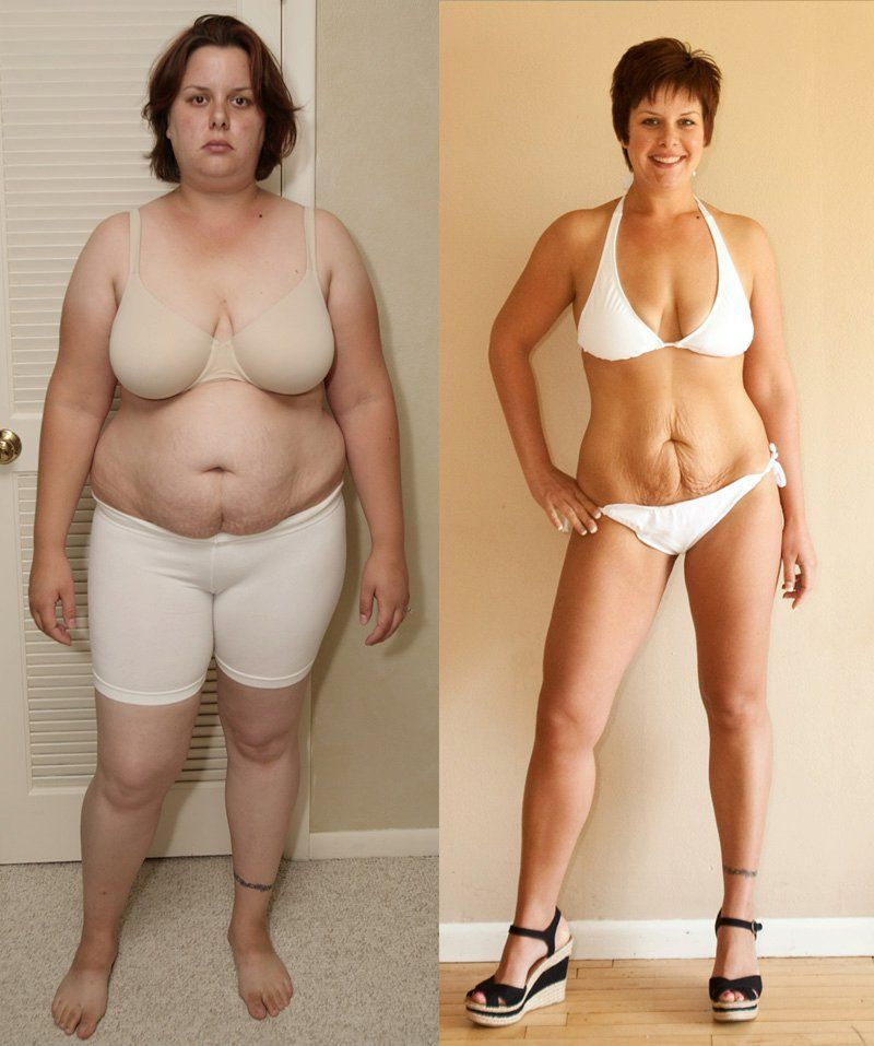 It can be done! She did it all by exercise and watching what she ate